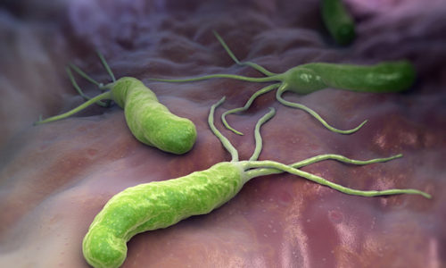 Заболевание также связано с развитием гастрита, то есть присутствием в организме хеликобактерий