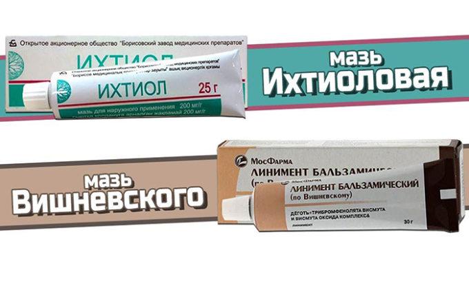 Также, для лечения могут быть использованы мази (Ихтиоловая, Вишневского), предотвращающие распространение инфекций, ликвидацию посторонней жидкости, гнойных выделений
