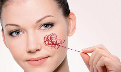 Основные признаки купероза на лице - покраснение кожи, проступающая сетка сосудов