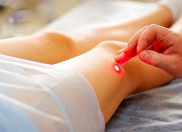 Преимущества лечения варикоза лазером
