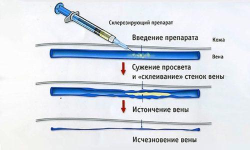 Одним из способов лечения варикоза является склеропластика. Процедура может быть чем-то схожа с лазерной коагуляцией и тоже представляет собой активное лечение варикоза без операции на поздних его стадиях