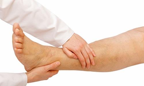 При лимфостазе возникает уплотнение тканей, стойкий отек и заметное утолщение конечности