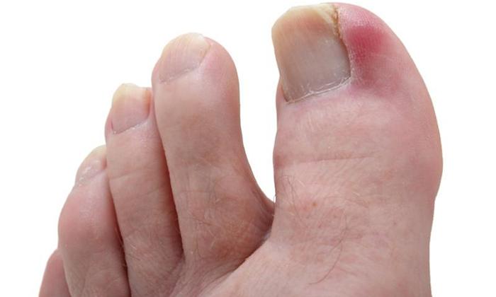 Вросший ноготь на ноге: что делать если гноится?