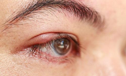 В особую форму патологии выделяется офтальморозацеа (сопряжена с глазным поражением)