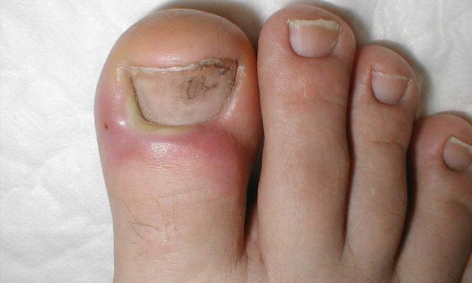 Процедура нужна тем людям, у которых на ногтях появились пятна