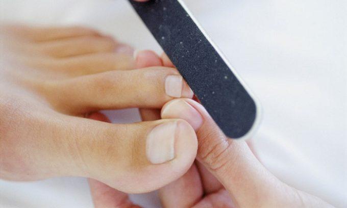 Неправильно сделанный педикюр может способствовать врастанию ногтя
