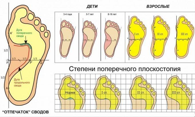 Проблема вросшего ногтя развивается из-за плоскостопия