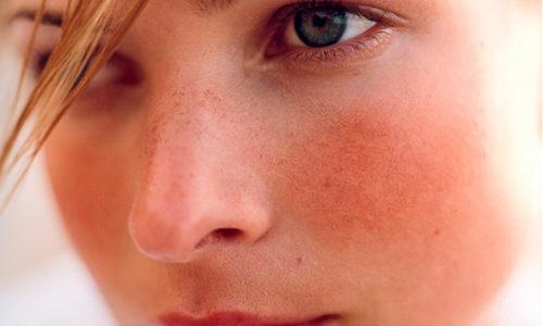 Лечение розацеа на лице остро необходимо, так как заболевание психологически воздействует на человека, особенно на женщину