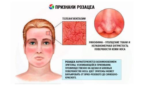 При развитии этой болезни в явной и характерной форме выражаются следующие розацеа симптомы: интенсивное покраснение в центре лица (лоб, нос, подбородок и щеки)