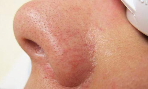 Наиболее активно процесс проявляется, как купероз на поверхности носа (особенно на его крыльях)
