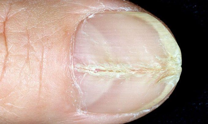 Изменения происходят с ногтем, который становится намного толще, теряет свой природный блеск, деформируется