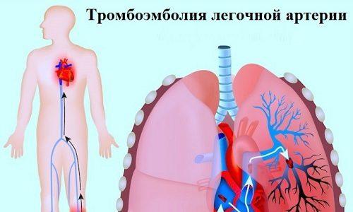 Наиболее серьезным осложнением развивающегося флеботромбоза является возникновение тромбоэмболии легочной артерии