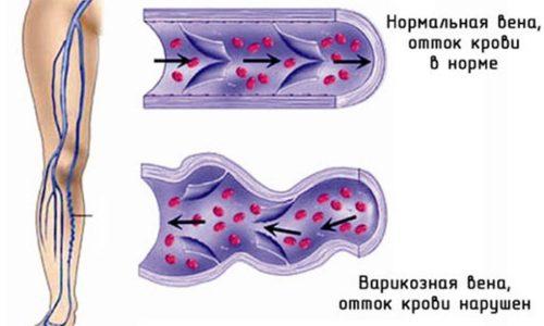 Варикозное расширение вен - это заболевание, которое характеризуются неравномерным увеличением вен и истончением венозных стенок