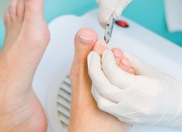 Почему врастают ногти: причины, методы лечении, профилактика