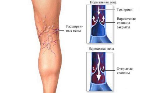 Причина возникновения патологии — нарушение циркуляции крови, которое происходит в результате сбоя кислородного обмена в клетках тканей