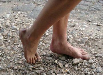 Беспокоят боли в ногах при варикозном расширении вен