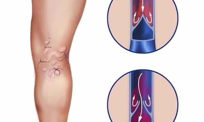 Заболевания венозной системы могут спровоцировать появление патологии