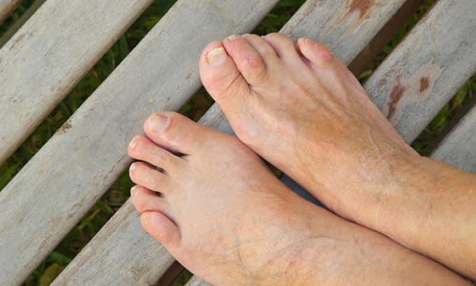 При наличии микротрещин на стопах или пальцах ног, значительно повышается риск инфицирования грибком