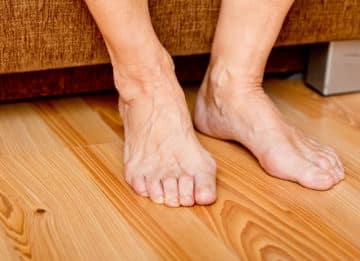 Причины возникновения грибка ногтей на ногах