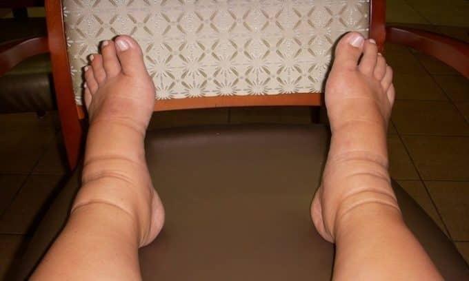 Частые отеки ног являются признаком появления в будущем плоскостопия