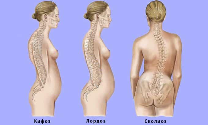 Изменение угла сводов стопы (плоскостопие) приводит к кардинальным перестройкам организма, одно из них искривление позвоночника