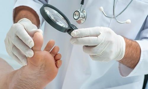 Для того, чтоб лечебная терапия была успешной, нужно выявить возбудителя болезни, что может сделать врач после результатов обследования