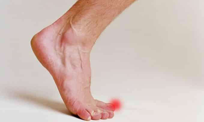 Травмы ногтей или ног могут стать причиной появления грибка